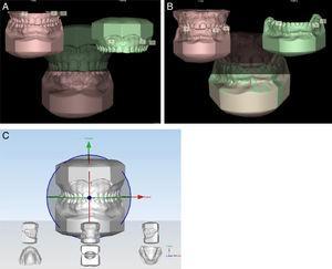A, Sobreposição dos modelos através do programa Maestro 3D Easy Dental Scan (Modelo Superior); B, Sobreposição dos modelos através do programa Maestro 3D Easy Dental Scan (Modelo Inferior); e C, Definição dos planos sagital, oclusal e transversal (X, Y e Z) através do programa Maestro 3D Ortho Studio.