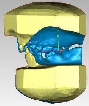 Medição do Overjet (Plano Z) e do Overbite (Plano Y) nos modelos digitais.