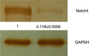 Proteínas totais isoladas das amostras de tecido de CVO e CCEO foram analisadas por Western Blot com o uso do anticorpo anti‐Notch4. Os blots se evidenciaram com o uso de DAB, revelaram uma alta expressão de Notch4 em amostras de CCEO, enquanto uma expressão muito fraca foi observada em amostras de CVO. Todos os experimentos foram feitos em triplicata e os dados foram analisados adicionalmente por densitometria, GAPDH serviu como normalizador.