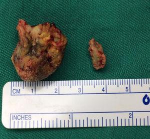 O tonsilólito arredondado maior originou‐se no espaço peritonsilar direito, enquanto o oval menor foi encontrado no polo superior da tonsila palatina direita.