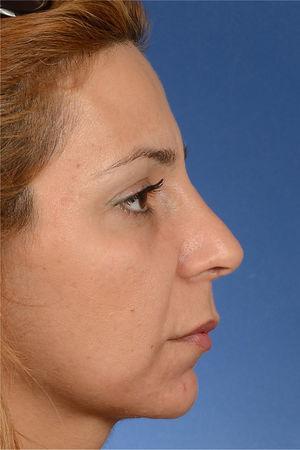 Giba cartilaginosa iatrogênica como resultado do ajuste inadequado da altura do septo. Sua pontuação na EVA para a aparência estética do nariz foi de 86% e seu escore no questionário ROE foi de 58%.