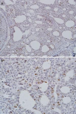 Expressão nuclear grave de CDC7 no carcinoma adenoide cístico (A, × 200; B, × 400).