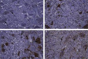 Coloração imuno‐histoquímica de (a) MMP‐2 em células gigantes de GCCG com coloração de intensidade leve (× 400). (b,c) Osteopontina em células gigantes e células mononucleares de GPCG com intensidade de coloração grave (× 400). (d) Osteopontina em células gigantes e células mononucleares de GPCG com coloração de intensidade moderada (× 400).