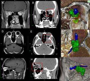Comparação da RM ponderada em T1 (A, D, G) com tomografia computadorizada (B, E, H) e com renderização em 3D (C, F, I) do paciente 1 com um grande tumor orbital. Observe como a renderização tridimensional dá profundidade à imagem e melhora a distinção entre o NO (N) e o tumor (T) orbital que não pode ser totalmente distinto na TC ou na RM.