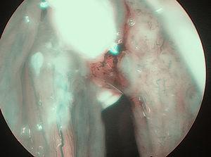 Câncer glótico em imagens de banda estreita (NBI).
