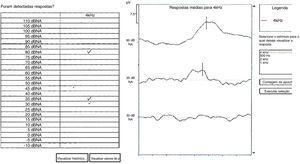 Um exemplo de estimativa de limiar de potencial evocado auditivo cortical automático para 4000Hz. No exemplo, o equipamento considerou respostas epresentes em 80 e 35 dBNA. A linha contínua negra indica a latência de P1 considerada pelos três examinadores.