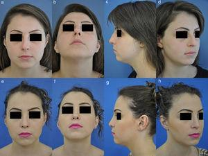 Caso1 (A–D) aparência pré‐operatória de paciente com giba dorsal e ponta nasal quadrada (boxy tip). (E a H) aparência pós‐operatória do paciente setemeses após ser submetido a rinoplastia. Técnica de SPAR, enxerto de cartilagem no rádix, strut de ponta nasal e turn‐in flap alar.