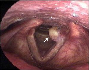 Granuloma de prega vocal (seta).