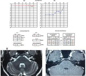 A) Audiometria que evidencia perda neurossensorial moderada em orelha esquerda. B) RM de ossos temporais T2, corte axial, com hipossinal em vestíbulo esquerdo. C) RM de ossos temporais, corte axial, T1 com contraste, lesão hipercaptante, em vestíbulo esquerdo.