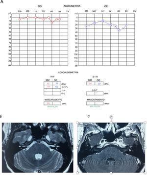 A) Audiometria que evidencia perda neurossensorial leve em orelha esquerda. B) RM de ossos temporais T2, corte axial, com hipossinal em vestíbulo esquerdo. C) RM de ossos temporais, corte axial, T1 com contraste, lesão hipercaptante, em vestíbulo esquerdo.
