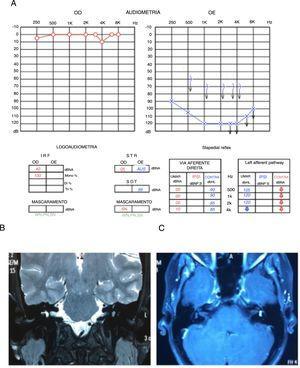 A) Audiometria que evidencia perda neurossensorial profunda em orelha esquerda. B) RM de ossos temporais T2, corte coronal, com hipossinal em vestíbulo esquerdo. C) RM de ossos temporais, corte axial, T1 com contraste, lesão hipercaptante, em vestíbulo esquerdo.