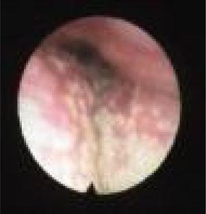 Visão de fibra óptica do colapso da TH, colapso da base alta da língua.