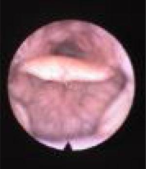 Visão de fibra óptica do colapso de TL, colapso da base baixa da língua que causa colapso epiglótico secundário.