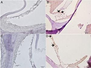 Análise imuno‐histoquímica da cóclea, IP, escala: 5μm. (A) Grupo Controle, expressão negativa da Caspase‐3 nas células ciliadas externas. (B) Grupo Cisplatina, imunopositividade intensa da Caspase‐3 nas células ciliadas externas (setas). (C) Grupo ácido gálico, expressão negativa da Caspase‐3 nas células ciliadas externas. (D) Grupo Cisplatina + ácido gálico, imunopositividade leve da Caspase‐3 nas células ciliadas externas (setas).