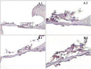 Imunomarcação de caspase‐9 do Órgão de Corti da cóclea. →: células ciliadas internas, → →: Células ciliadas externas, LE: Limbo espiral, LgE: Ligamento espiral, MB: Membrana basal, PMA (−) (A), PMA (+) (B), órgão de Corti X40 (1), Órgão de Corti X100 (2). Coloração de fundo: hematoxilina de Mayer.