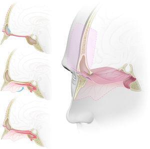 """Representação gráfica da técnica de duplo retalho com os retalhos pericraniano e nasoseptal para reconstrução da base anterior do crânio. (A) vista sagital. O retalho pericraniano, após ser colhido com uma incisão bicoronal, é introduzido na cavidade nasossinusal através de uma """"janela"""" na parede anterior do seio frontal, atinge o plano esfenoidal e a sela. (B) Vista sagital. Retalho nasoseptal retirado da parede medial da cavidade nasal, preserva seu pedículo vascular e colocado sobre o defeito da base anterior do crânio. (C) Vista sagital. Os retalhos pericraniano e nasoseptal se sobrepõem e reforçam os pontos fracos um do outro para a reconstrução da base anterior do crânio, reduzem o risco de fístula liquórica ou herniação cerebral. (D) Vista tridimensional com uma secção sagital da linha média. Defeito na base do crânio da parede posterior do seio frontal para o plano esfenoidal, reconstituído pela técnica endoscópica de duplo retalho com os retalhos pericraniano e nasoseptal reforçando‐se mutuamente, melhora o suporte mecânico das estruturas intracranianas e uma barreira mais efetiva à fístula liquórica."""