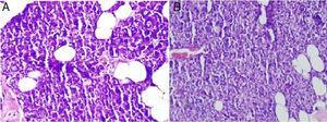 (A) Acúmulo de muco nas células acinares da glândula parótida no grupo de excisão unilateral da glândula submandibular (400×, microscópio óptico, H&E). (B) Acúmulo de muco nas células acinares da glândula parótida do grupo de excisão bilateral da glândula submandibular (400×, microscópio óptico, H&E).