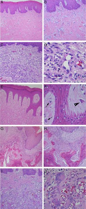Coloração com hematoxilina e eosina. (A) Hiperplasia fibrosa inflamatória (40×); (B) Maior aumento do mesmo caso mostrando densos feixes de fibras colágenas (100×); (C) Granuloma piogênico oral (100 x); (D) Maior aumento do mesmo caso mostrando grande quantidade de células endoteliais e vasos sanguíneos neoformados (400×); (E) Fibroma de células gigantes, com projeções epiteliais finas e longas (100×); (F) Maior aumento do mesmo caso mostrando a presença de fibroblastos com morfologia estrelada (seta) e multinucleados (cabeça de seta) (400×); (G) Fibroma ossificante periférico, com produto mineralizado no tecido conjuntivo (40×); (H) Maior aumento do mesmo caso demonstrando formação de trabéculas ósseas irregulares (100×); (I) Lesões de células gigantes periféricas (100×); (J) Maior aumento do mesmo caso com grande quantidade de células gigantes multinucleadas associadas a áreas hemorrágicas (400×).