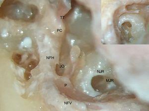 Fotografia que mostra o formato de sela da membrana da janela redonda (MJR), situada profundamente no nicho da janela redonda (NJR). NFV, nervo facial vertical; NFH, nervo facial horizontal; P, pirâmide; JO, janela oval; PC, processo cocleariforme; TT, tendão do tensor do tímpano. A inserção no canto superior direito mostra a imagem ampliada da membrana da janela redonda e do tendão do estapédio que se origina da pirâmide.