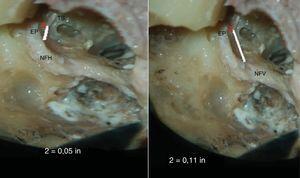 Fotografia mostra a medida da distância mínima entre a eminência piramidal (EP) e o segmento horizontal (NFH) e segmento vertical (NFV) do nervo facial (EP‐NFH e EP‐NFV). TS, Tendão do estapédio.