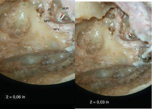 (A,B) Fotografias mostram as medidas da altura e largura máximas da membrana da janela redonda. (A mostra a medida da largura, a qual é feita na dimensão horizontal e B mostra a medida da altura da MJR, a qual é feita na dimensão vertical.) Pode‐se observar que a largura da MJR é maior do que a altura, uma vez que a primeira é alinhada horizontalmente. MJR, membrana de janela redonda; JO, janela oval; NFV, nervo facial vertical; NFH, nervo facial horizontal.