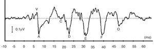 Uma resposta típica do potencial do tronco encefálico com estímulo da fala (Peate‐Fala) evocado por uma sílaba falada de 40ms / da /.