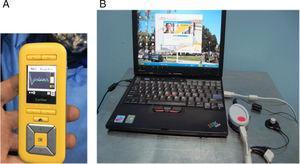 A, Unidade de controle remoto denominada CR220®. B, Conjunto formado pelo software e interface de programação foi feita via cabo.