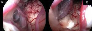 Visão endoscópica do conflito neurovascular antes da descompressão (A) e após a interposição da esponja de Teflon® entre a artéria cerebelar posterorinferior (PICA) e o nervo facial (B). O asterisco (B) mostra a área onde o vaso estava e o decúbito no nervo facial.