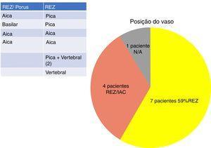 Frequência dos diferentes locais de conflito neurovascular em nosso grupo de estudo. PICA, artéria cerebelar posteroinferior; AICA, artéria cerebelar anteroinferior. ZER, zona de entrada da raiz; CAI, canal auditivo interno; N/A, conflito não arterial (veia).