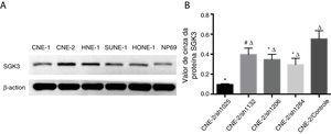 Detecção da expressão da proteína SGK3 em linhagens de células de CNF. (A) Expressão representativa da proteína SGK3 em diferentes linhagens celulares de CNF e células NP69 detectadas por análise de Western blot. (B) Análise do valor de cinza da expressão da proteína SGK3 como a proporção entre a SGK3 e a p‐actina nos resultados de Western blot; a SGK3 foi mais altamente expressa na maioria das linhagens de células de CNF (CNE‐2, HNE‐1, SUNE‐1) do que nas células NP69 (p<0,01).
