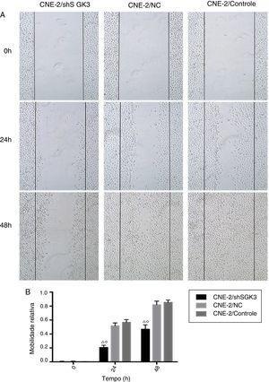 O efeito da down‐regulação da SGK3 na motilidade das células CNE‐2. (A) Distância em diferentes momentos após o teste da raspagem (ampliação original: X 5). As distâncias das raspagens no grupo shSGK3 não mudaram de maneira óbvia após 24 horas, enquanto as células nos grupos NC e controle exibiram taxas de migração mais altas (p < 0,01). Após 48 horas, as células do grupo shSGK3 ainda não haviam se recuperado do dano (p < 0,01), mas as raspagens celulares dos grupos NC e controle dificilmente eram visíveis. (B) Comparação das taxas de migração celular em diferentes momentos pelo teste de arranhadura; as taxas de migração celular no grupo shSGK3 foram maiores do que as dos grupos NC e controle após 24 e 48 horas (△◊p < 0,01).