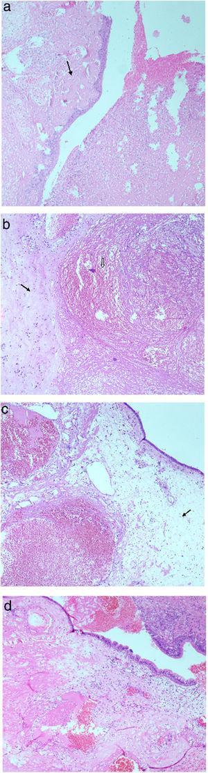 (a) Metaplasia escamosa e ulceração substituída por exsudato inflamatório agudo, seta aponta para exsudato fibrinoso subepitelial (H&E a 40×). (b) Um vaso sanguíneo com ectasia com trombo em organização (ponta de seta) e seta aponta para área adjacente de fibrose estromal (coloração H&E a 40×). (c) Mucosa respiratória com edema subepitelial acentuado (seta) e vasos sanguíneos com ectasia e trombose (coloração H&E a 40×). (d) Mucosa respiratória polipoide com edema subepitelial, exsudação acentuada de fibrina e áreas de hemorragia recente (coloração H&E a 40×).