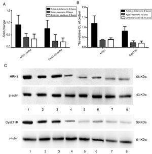 Detecção da expressão gênica e dos níveis de expressão proteica dos receptores de histamina H1 e leucotrieno CysLT1 de participantes antes e após a medicação. A, Quantificação dos níveis de mRNA dos receptores de histamina H1 e leucotrieno CysLT1 analisados por qPCR. B, Quantificação dos níveis de proteína dos receptores de histamina H1 e leucotrieno CysLT1 analisados por Western Blot. C, Imagens de Western Blot das proteínas de histamina H1, leucotrieno CysLT1 e controle. Antes do tratamento: faixas 1, 2, 3; pós‐tratamento: faixas 4, 5, 6 e controle saudável: Faixas 7, 8. β‐actina e γ‐tubulina foram respectivamente usados como controle para os receptores de histamina H1 e leucotrieno CysLT1 em qPCR e Western Blot.
