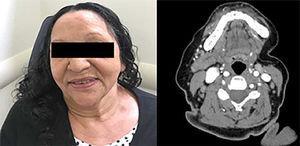 Ausência de lesões cervicais 72 meses após a hospitalização. A tomografia computadorizada manteve a resolução do tumor da glândula submandibular esquerda 75 meses após a remissão.