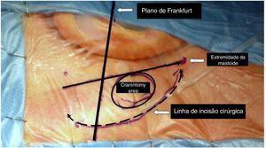 Diferenças na dimensão de uma craniotomia feita com abordagem tradicional retrosigmoide e com a EAMIRSA.