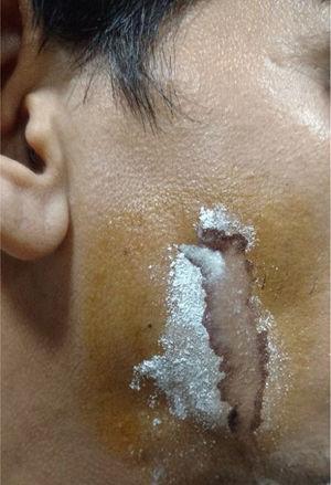 Após polvilhar o local com amido e administrar o sialogogo, observa‐se o local do extravasamento salivar.