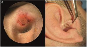 Fotografias mostra (a) uma incisão de enxerto modificada em U para preservar a borda da cartilagem tragal; (b) aparência da incisão do enxerto secundário cicatrizado no sexto mês após a cirurgia.