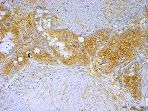 A imunocoloração para syndecan‐1 foi observada em células tumorais e estromais, mas não em células de mucosa de carcinoma mucoepidermoide (barra de escala representa 0,1mm).