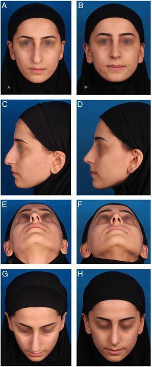 Imagens pré‐operatórias (A, C, E, G) e 11 meses pós‐operatórias (B, D, F, H) de uma mulher de 25 anos submetida a rinoplastia estética com a técnica de cartilagem entrelaçada. O principal problema era a tensão no nariz com desvio acentuado, especialmente na visão basal. Neste caso, também foram feitas a remoção de dorso ósseo e cartilaginoso, com retalho autoexpansor bilateral, osteotomia medial‐transversa e lateral e técnica de sutura na plástica da ponta nasal.