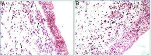 Tecido polipoide nasal corado com hematoxilina e eosina. Infiltração eosinofílica, indicada pelas setas, predominante nos pacientes com RSCcPN eosinofílica (A). Infiltrado inflamatório sem predominância eosinofílica nos pacientes com RSCcPN não eosinofílica (B) (400×).