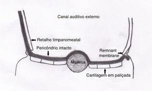 Enxerto colocado com a técnica de underlay de acordo com o retalho timpanomeatal, anel fibroso e remanescente de membrana e a técnica de overlay de acordo com o martelo. O pericôndrio intacto que mantém as paliçadas juntas está voltado para o canal auditivo externo.