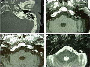 """A tomografia computadorizada de alta resolução do osso temporal revelou erosão óssea retrolabiríntica na região do saco endolinfático esquerdo, com margens irregulares e """"padrão roído por traças"""" (A). A lesão apresentava sinal isointenso nas imagens ponderadas em T1da RM (B) e acentuado realce pelo contraste (C); sinal heterogêneo hiperintenso em T2‐WI (D)."""