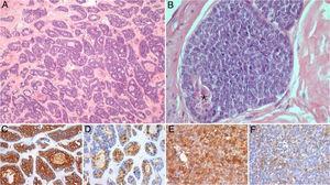 Fotomicrografias representativas do tumor submandibular primário: A e B (Hematoxilina e Eosina, 100x e 400x) mostram um carcinoma adenoide cístico de alto grau, com padrões cribriforme e sólido (esse representa mais de 30% do volume tumoral), com áreas de necrose (*); coloração imuno‐histoquímica para CK7 (C, 200x), PS100 (D, 200x), AML (E, 200x) e CD117 (F, 200x) demonstra a população de células bifásicas característica desse tumor, composta por células ductais e mioepiteliais.