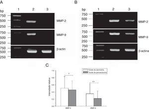 Expressão do mRNA de MMP‐2 e MMP‐9 em tecidos tumorais, tecidos de pericarcinoma e tecidos polipoides de controle obtidos de pacientes com carcinoma hipofaríngeo e pólipo de cordas vocais de pacientes. (A) Expressão representativa de mRNA de MMP‐2 e MMP‐9 em tecidos tumorais e tecidos de controle polipoides. Os tecidos de câncer mostraram uma expressão de mRNA mais intensa de MMP‐2 e MMP‐9, mas quase não houve expressão em tecidos polipoides de controle (faixa 1, 1kb na escada de DNA; faixa 2, tecido de carcinoma; faixa 3, tecido polipoide de controle). (B) Expressão representativa de mRNA de MMP‐2 e MMP‐9 em tecidos tumorais e tecidos de pericarcinoma. Os tecidos cancerígenos mostraram uma expressão de mRNA com nível mais alto de MMP‐2 e MMP‐9 do que os tecidos de pericarcinoma (faixa 1, 1kb na escada de DNA; faixa 2, tecido de carcinoma; faixa 3, tecido de pericarcinoma). (C) Intensidade relativa da expressão de mRNA de MMP‐2 e MMP‐9 em tecidos de carcinoma e de pericarcinoma. Os tecidos de carcinoma exibiram níveis mais altos de expressão de mRNA de MMP‐2 e MMP‐9 do que os tecidos de pericarcinoma. (* p <0,05 e ** p <0,01).
