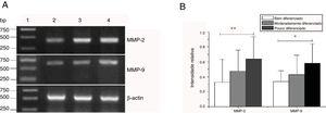 Expressão de mRNA de MMP‐2 e MMP‐9 em tecidos tumorais de diferentes estágios histopatológicos obtidos de pacientes com carcinoma hipofaríngeo. (A) Expressão representativa de mRNA de MMP‐2 e MMP‐9 em tecidos tumorais de diferentes estágios patológicos. A expressão de MMP‐2 e MMP‐9 foi reduzida com a melhora do grau de diferenciação (faixa 1, 1kb na escada de DNA; faixa 2, paciente bem diferenciado; faixa 3, paciente moderadamente diferenciado; faixa 4, paciente pouco diferenciado); (B) Intensidade relativa da expressão do mRNA de MMP‐2 e MMP‐9 em tecidos tumorais de diferentes estágios histopatológicos. Pacientes pouco diferenciados exibiram níveis mais altos de expressão de mRNA de MMP‐2 e MMP‐9 do que pacientes bem diferenciados (*p <0,05 e ** p <0,01).