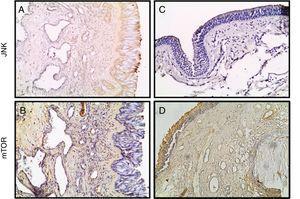 Fotomicrografias de JNK e coloração para mTOR nos tecidos de conchas nasais (A, B) e PNs (C, D). (Ampliação original × 200).