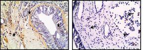 Fotomicrografias de coloração TUNEL nos tecidos de conchas nasais (A) e PNs (B). As células TUNEL‐positivas foram identificadas pela coloração marrom (estrela) (Seta: eosinófilos) (A, B; ampliação original × 400).