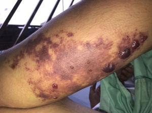 Violaceous ecchymotic lesion in posterior middle third of the right arm following a spider bite.