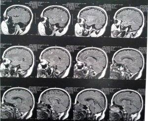 Brain magnetic resonance imaging of the case 3 years after the first psychiatry consultation.