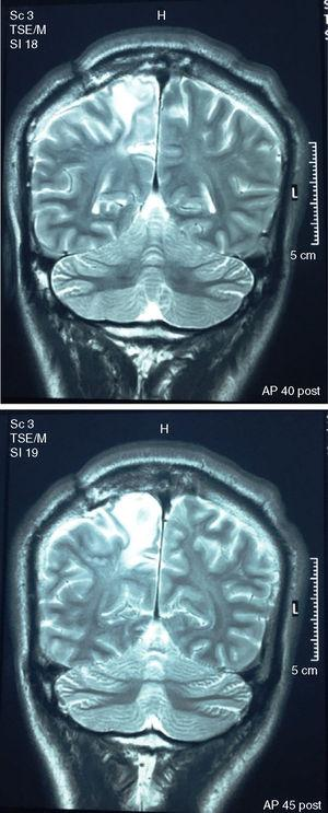 """Magnetic resonance imaging of the brain (coronal plane in T2 without contrast) taken 4 months before the onset of the psychosis and 2.5 years after the surgical excision of the tuberculoma. The radiological report describes """"large area of oedema with finger-like pattern in right frontal para-sagittal white matter."""""""